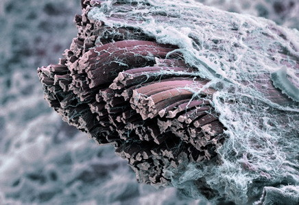 Fasziengewebe